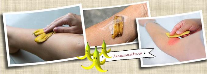 Банановая кожура против ожогов царапин укусов